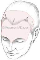 Dr. Pearson Forehead Lift Endoscopic Approach