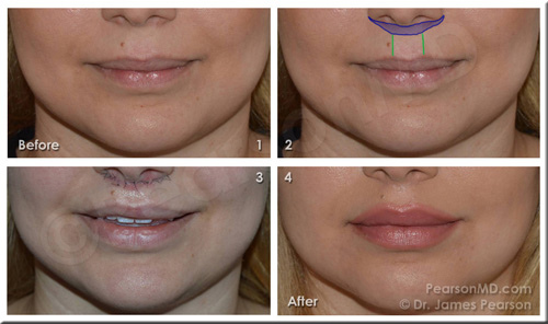 Lip Lift Before After Photo