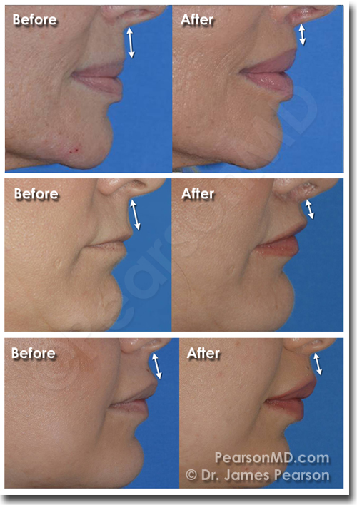 Lip Lift Before After Diagram