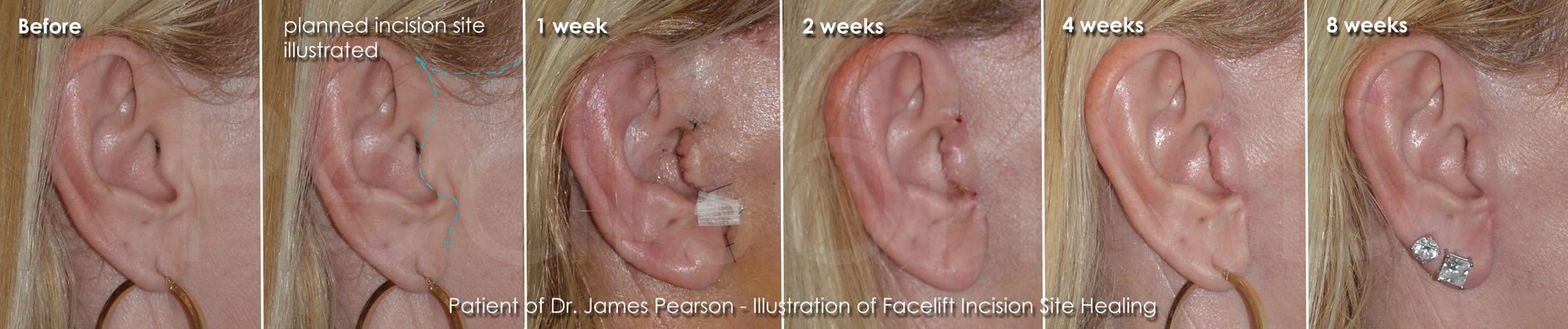 Pearson Facelift Incision