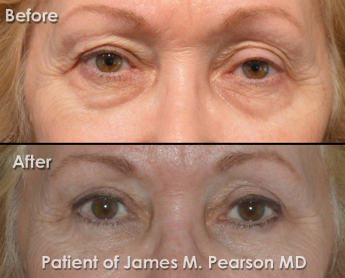Photo Pearson Eyelid Surgery