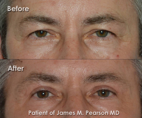 Photo Pearson Male Eyelid Surgery