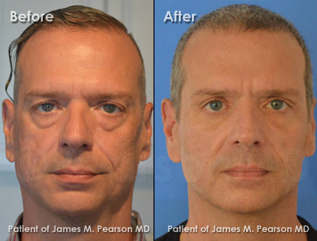 Photo Pearson Eyelid Surgery for Men