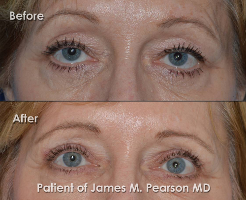 Pearson Eyelid Surgery Photo