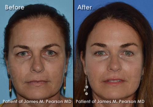 Pearson Brow Lift