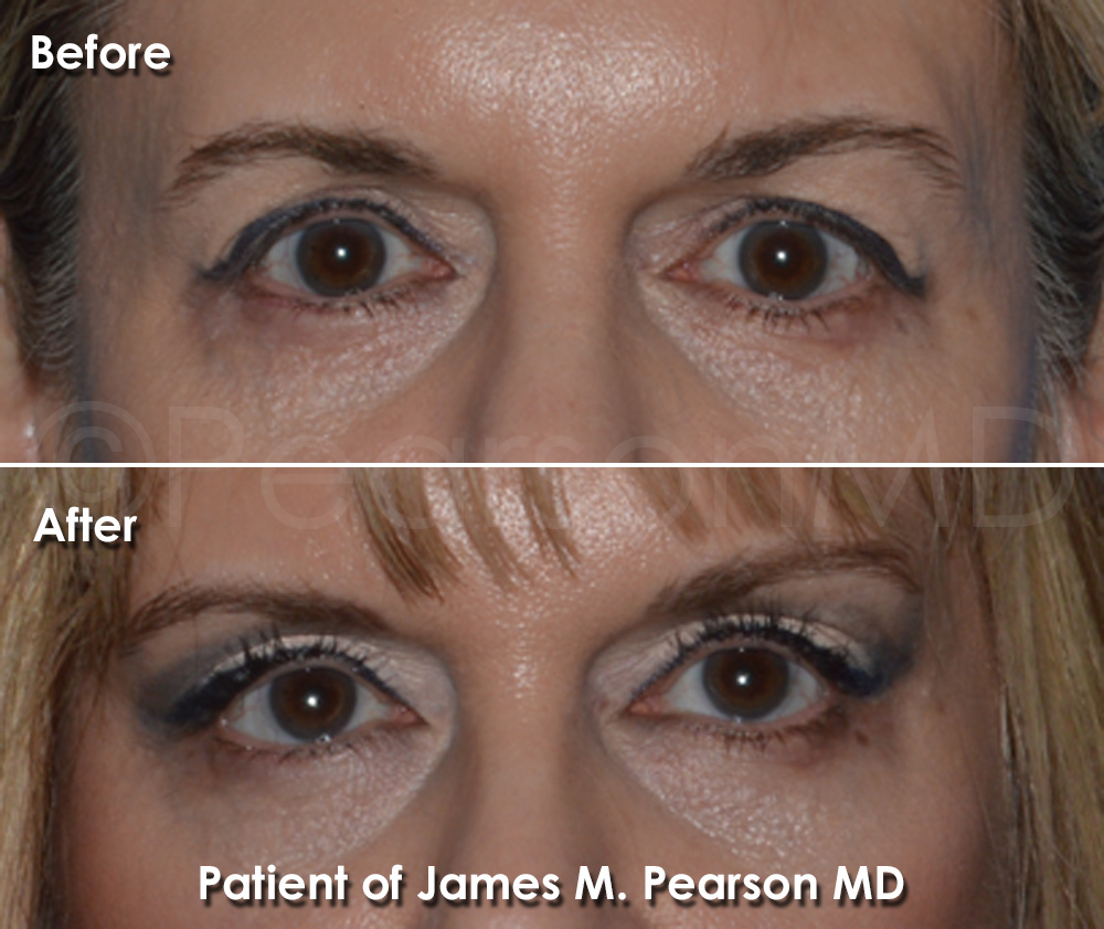 Dr. Pearson Browlift Photo