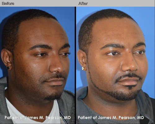 Pearson Cheek Augmentation