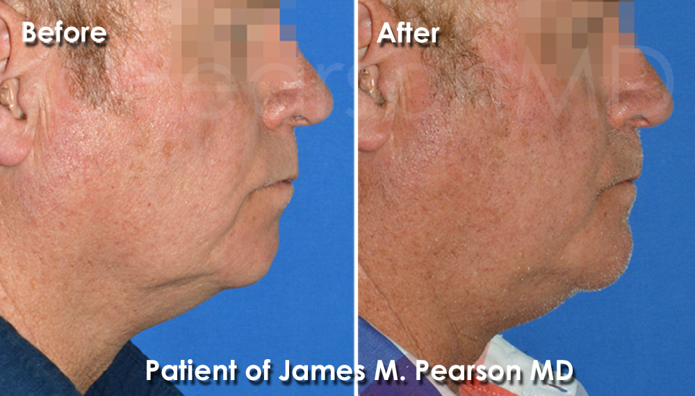 Dr. Pearson Chin Implant Photos