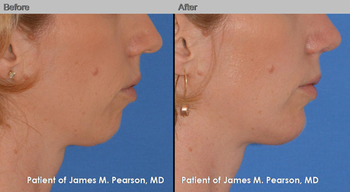 Pearson Chin Augmentation Photos