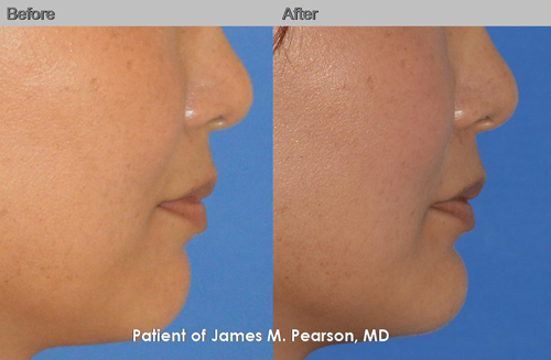 Pearson Chin Implant Photos