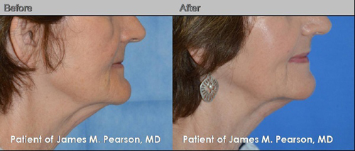 Photo Pearson Chin Surgery
