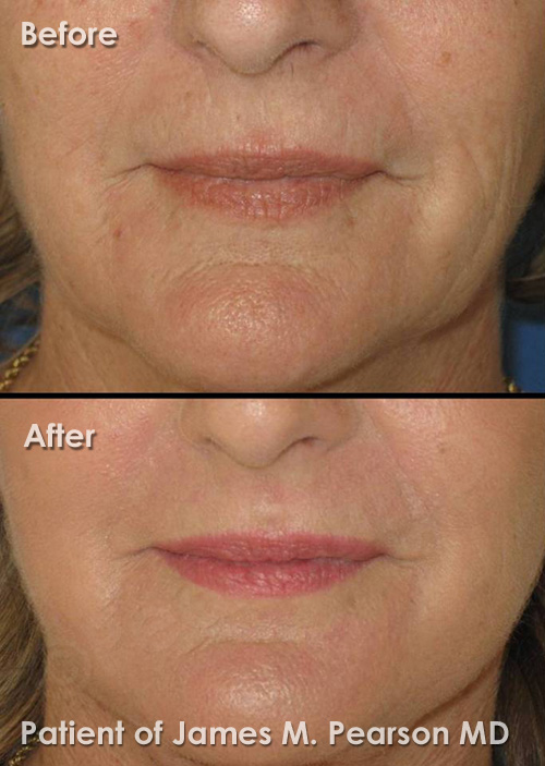 Photo Pearson perioral rejuvenation
