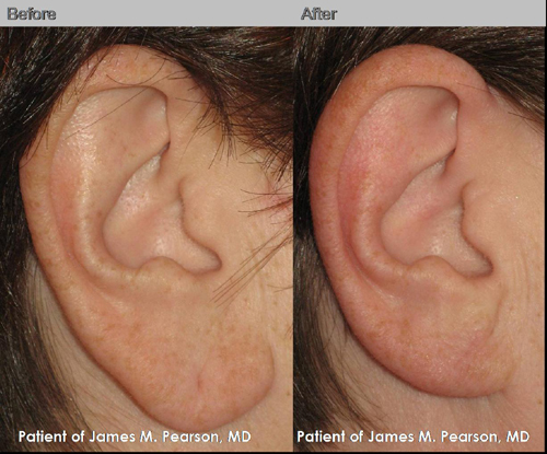 Photos Dr. Pearson Earlobe Reduction