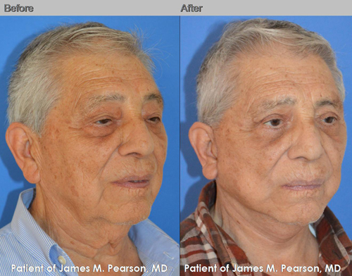 Dr. Pearson Male Facelift Photo