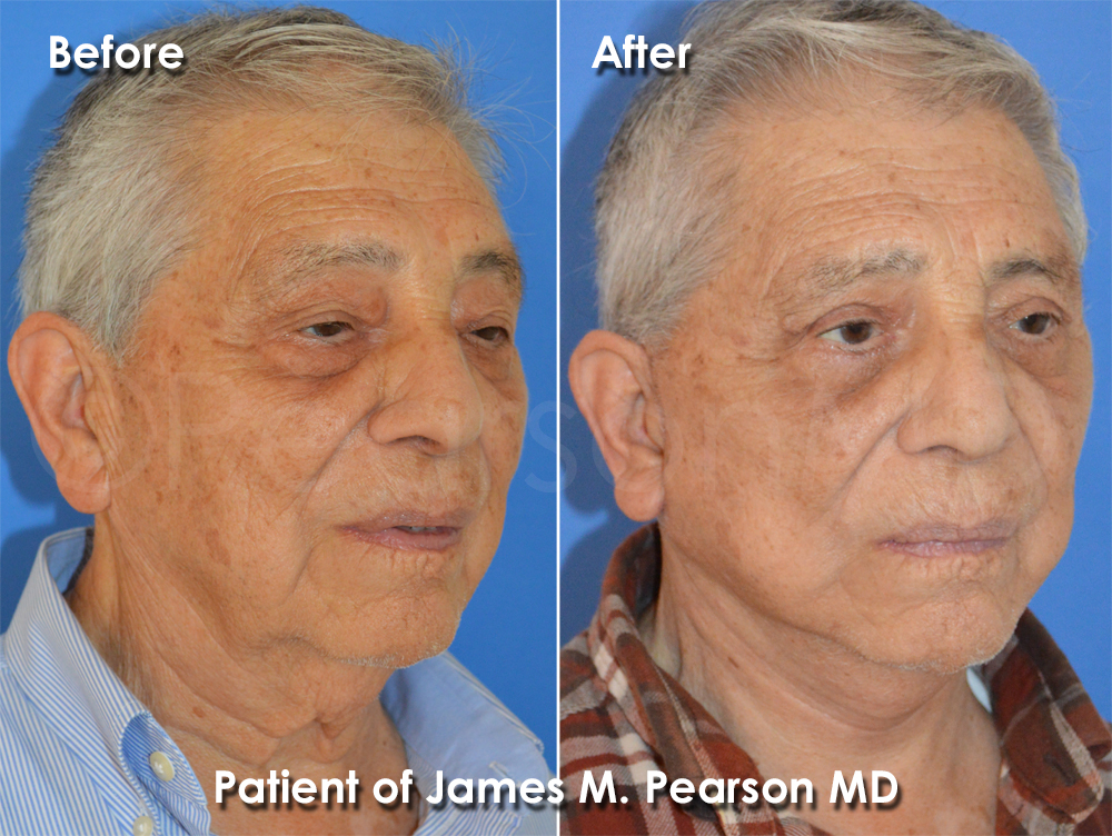 Dr. Pearson Facelift for Men