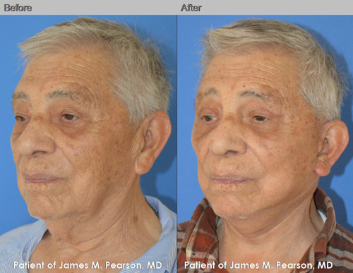 Dr. Pearson Male Facelift & Neck Lift Photo
