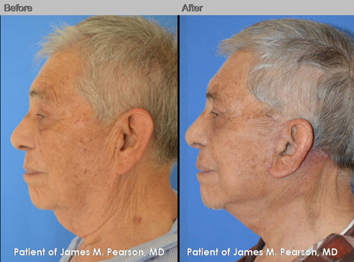 Dr. Pearson Male Neck Lift Photo