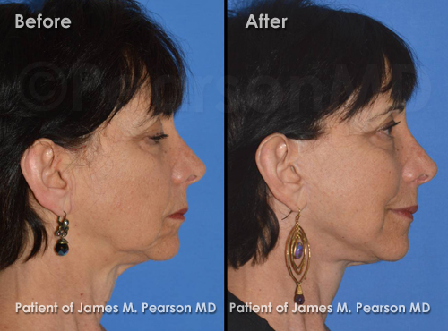 Pearson Facelift Photos