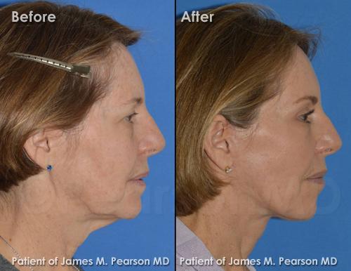 Photos Pearson Facelift