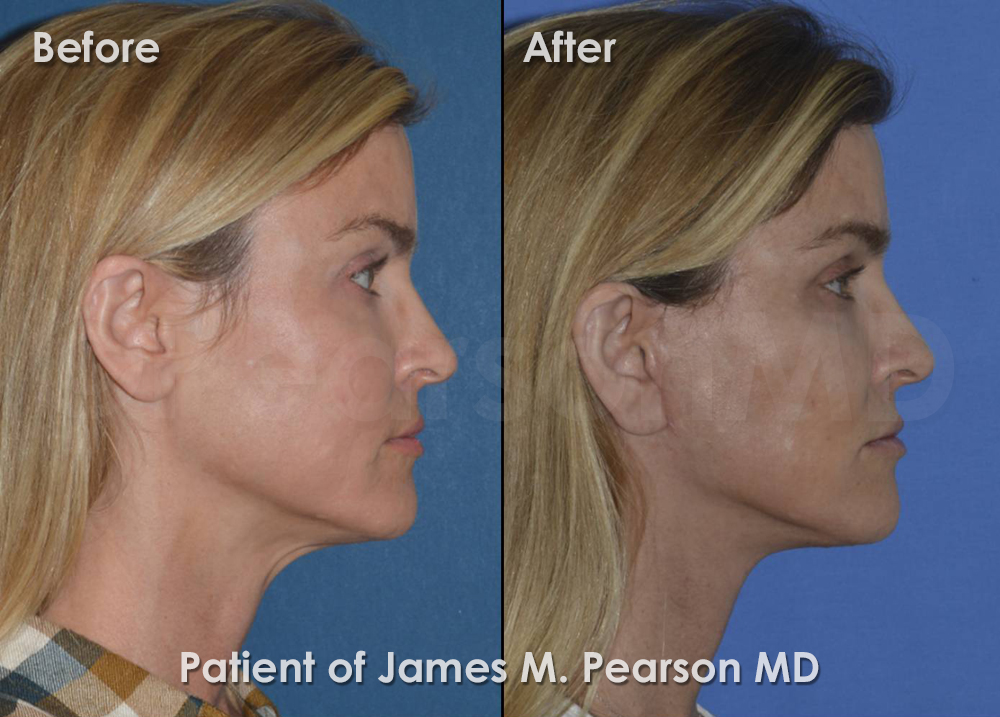 Beverly Hills Facelift