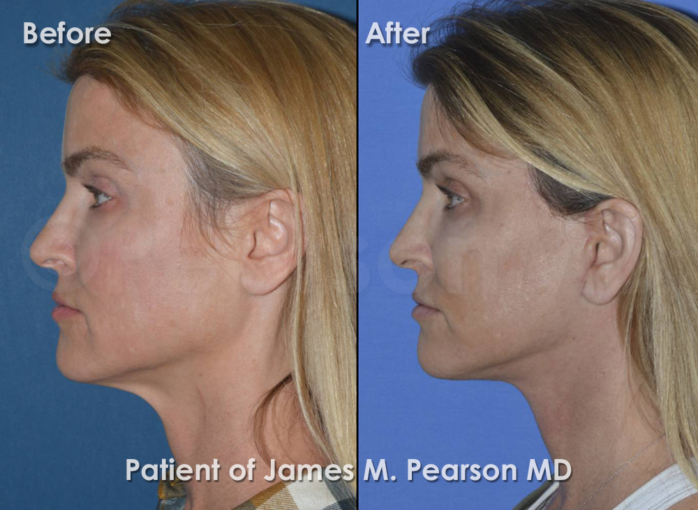 Pearson Facelift