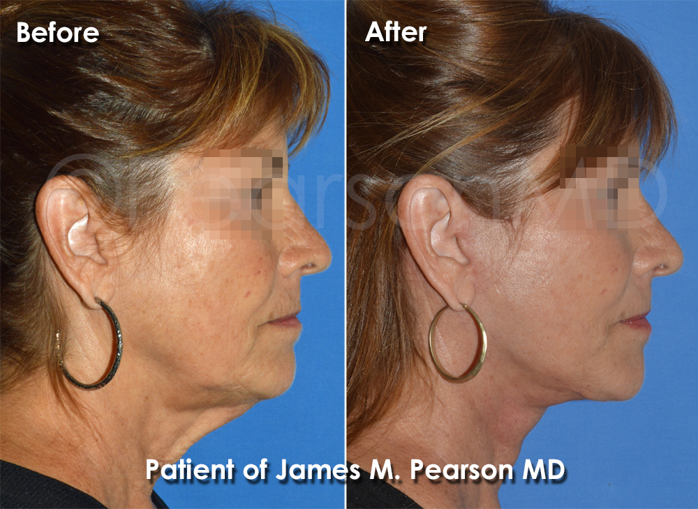 Pearson Facelift Photo