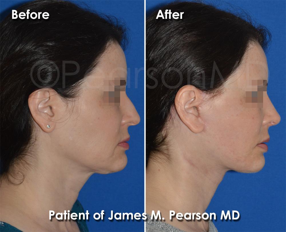 Pearson Plastic Surgery