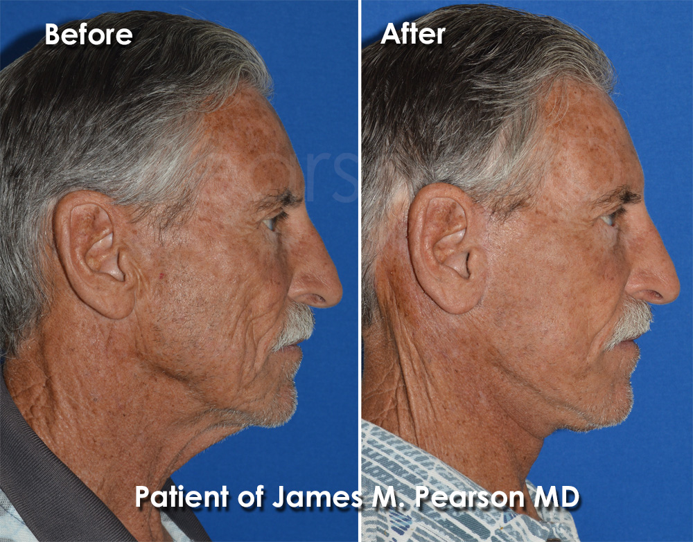 Pearson Facelift for Men