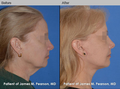 Dr. Pearson facelift surgery before and after photo