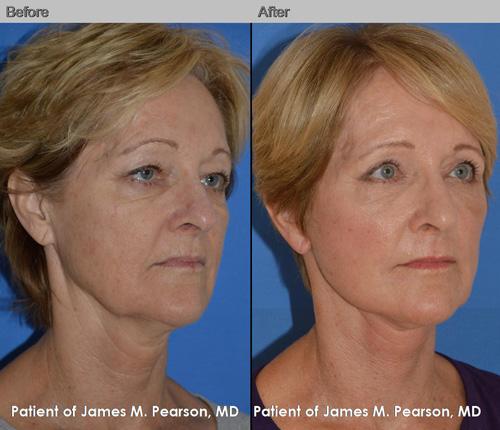 Pearson Facelift Necklift Photos