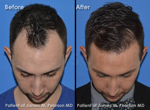 Photo Dr. Pearson Hair Restoration