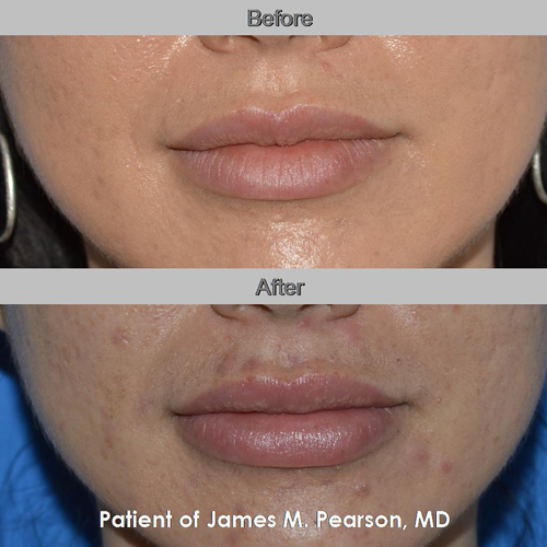 Pearson Lip Implant Photos