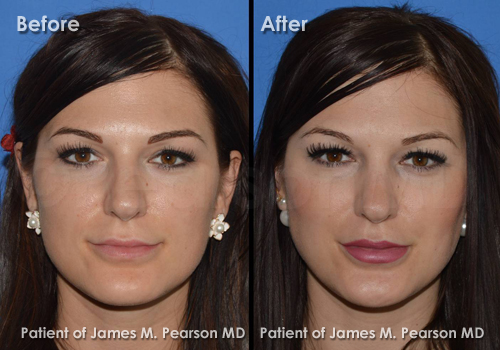 Lip Implant Photos - Before & After - Dr  James Pearson