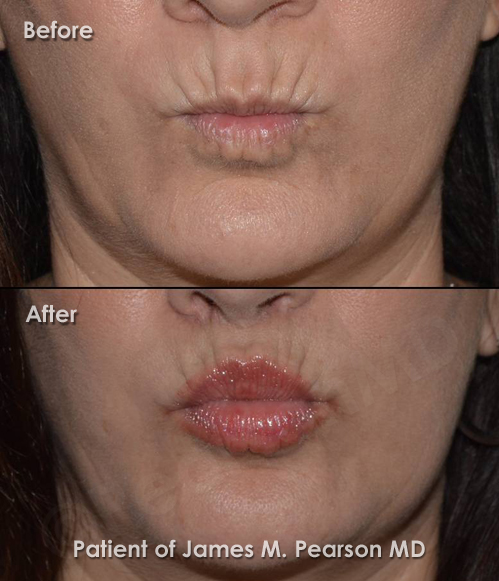 Lip Lift Photos Before Amp After Dr James Pearson