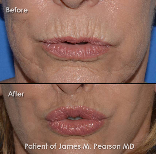 Beverly Hills Lip Lift Photos