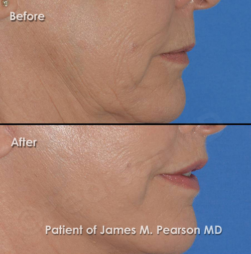 Pearson Lip Lift Photos