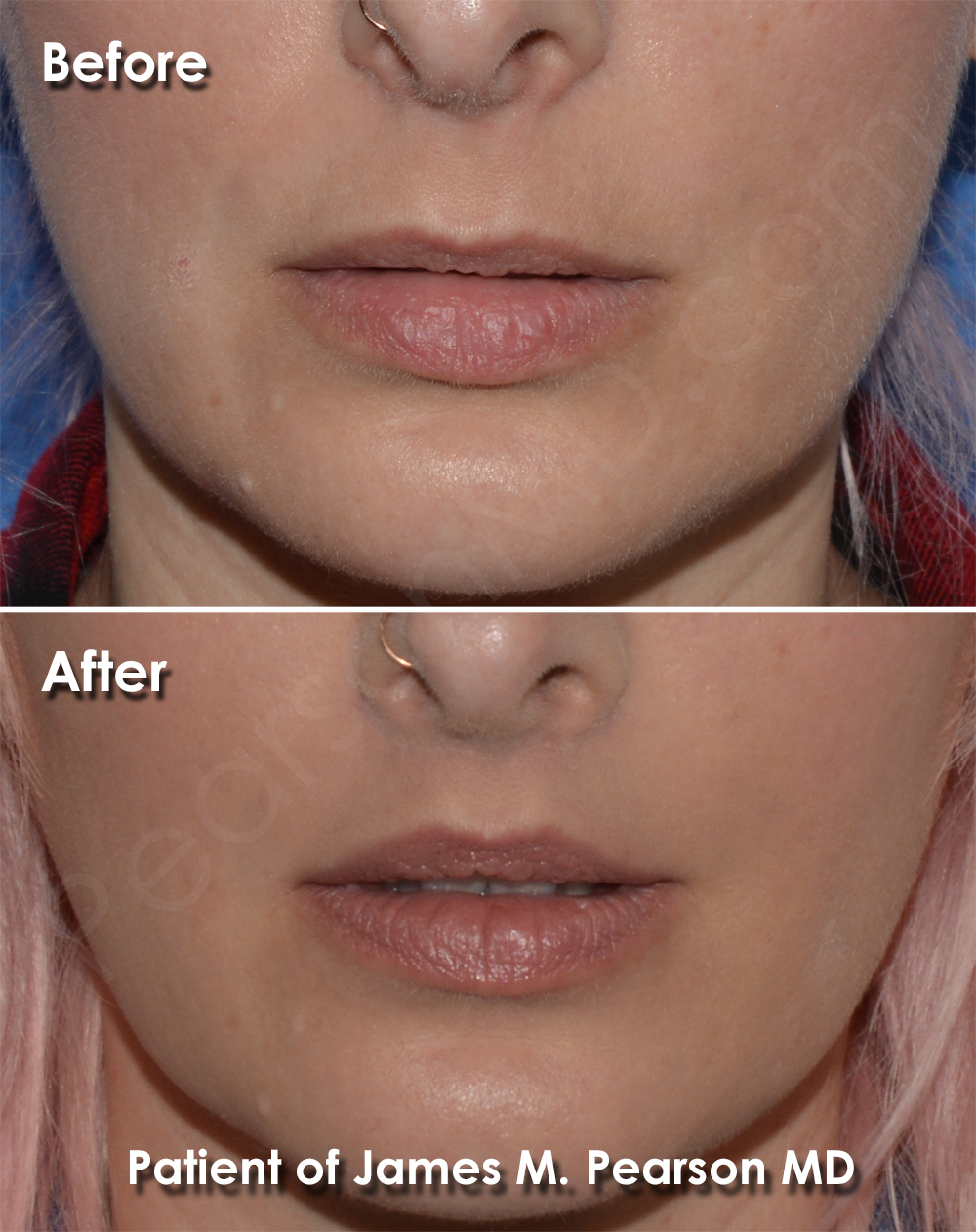 Lip Lift Photos - Before & After - Dr  James Pearson Facial