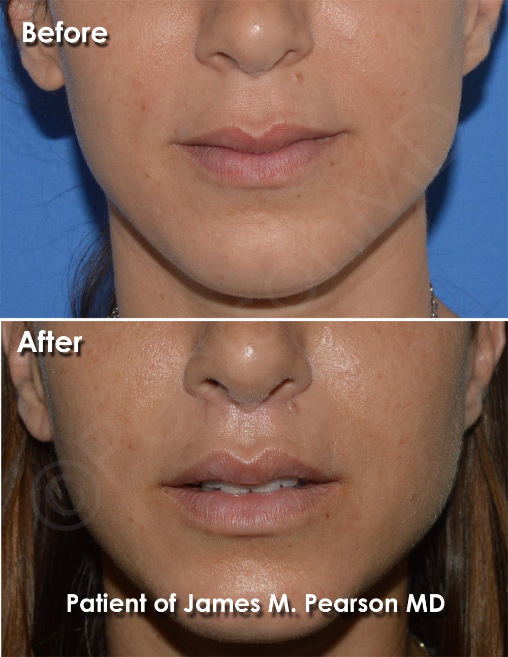 Pearson Lip Plastic Surgery