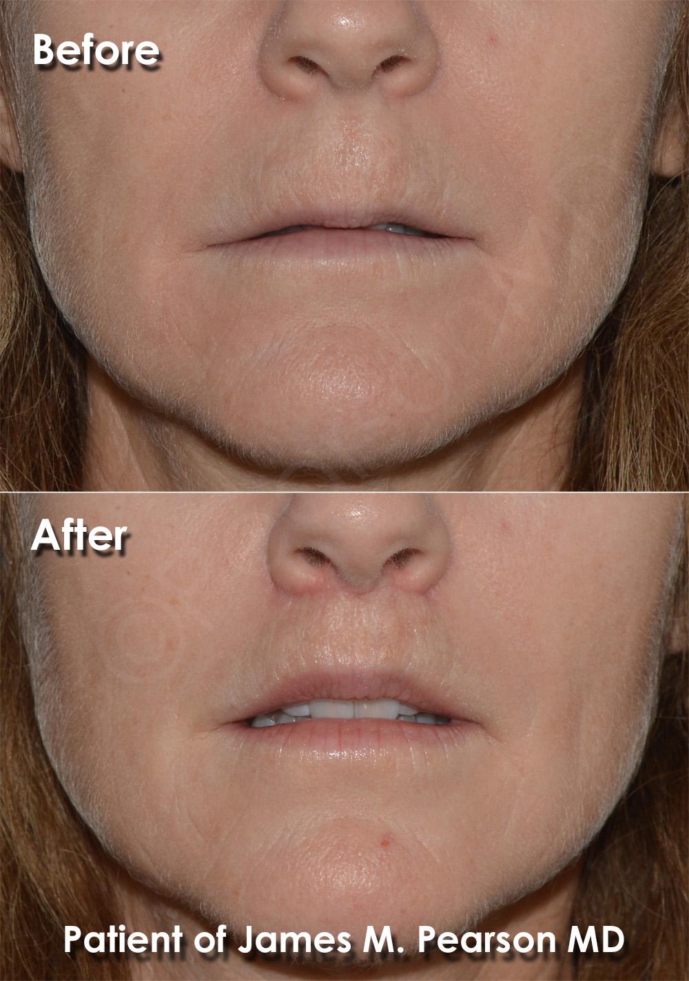 Dr. Pearson Plastic Surgery