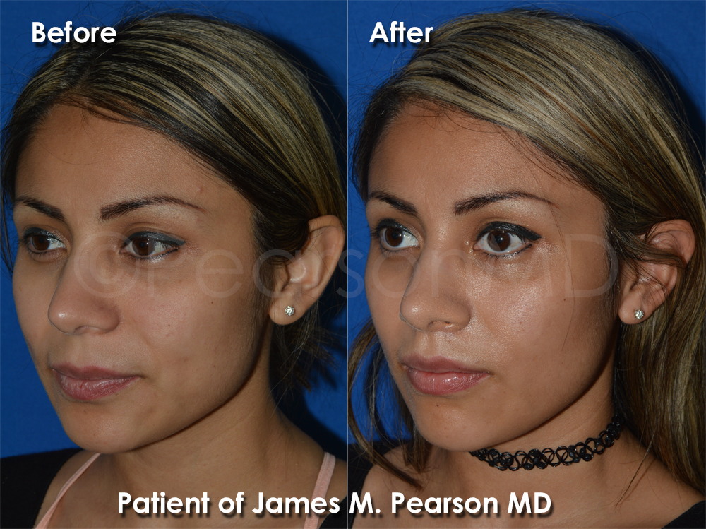 Dr. Pearson Cosmetic Surgeon