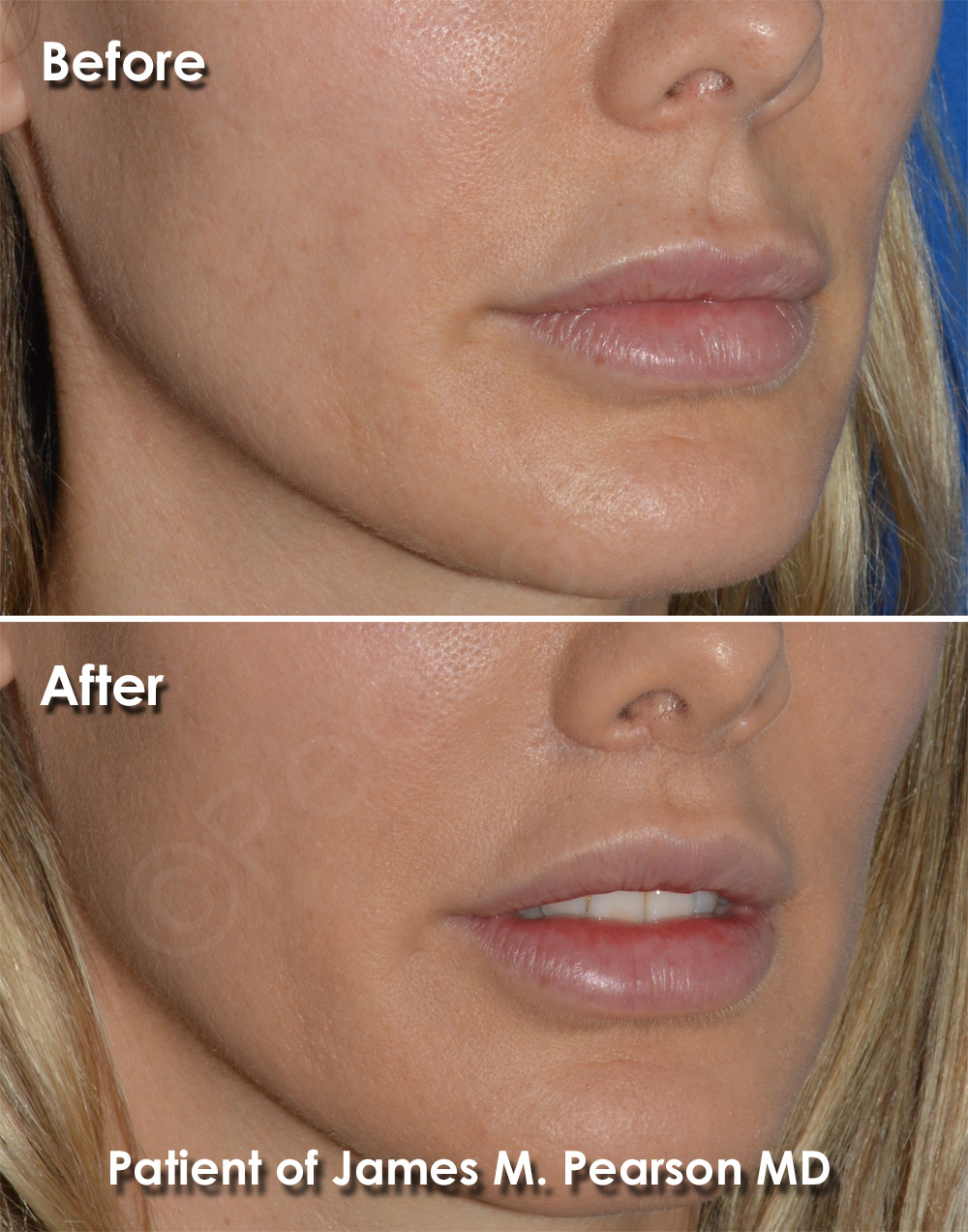 Pearson Cosmetic Surgery