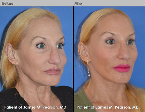 Pearson Midface Cheek Lift Photos