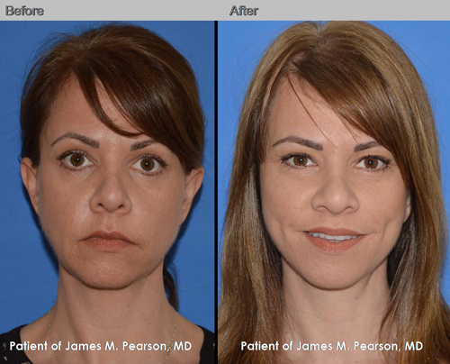 Mid Face Lift Cheek Lift Photos Before Amp After Dr