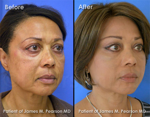 Pearson Cheek Lift Photos