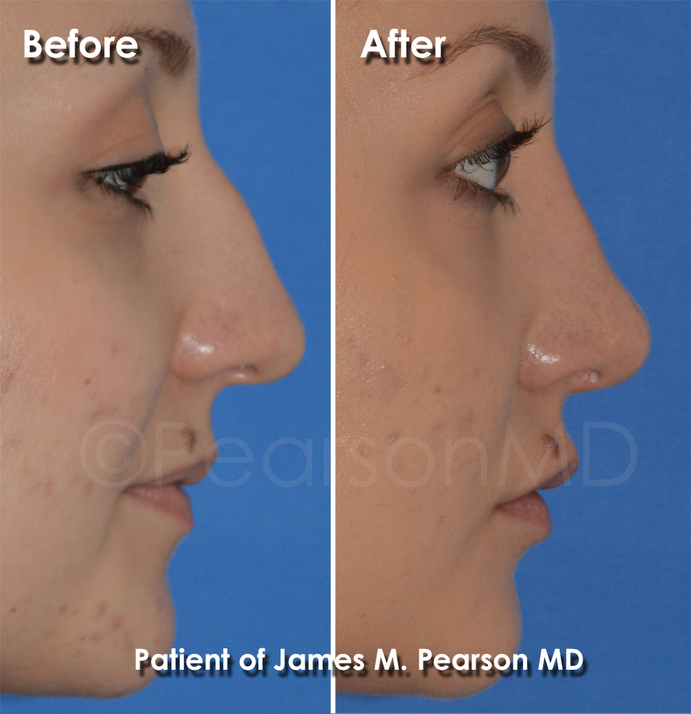 Pearson Rhinoplasty Photo