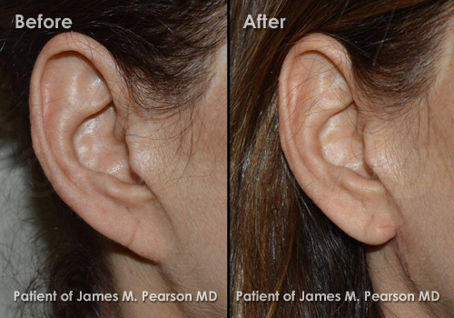 Photo Pearson Pixie Earlobe Repair