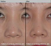Pearson Asian Rhinoplasty Photos