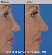 Pearson Revision Rhinoplasty Photos