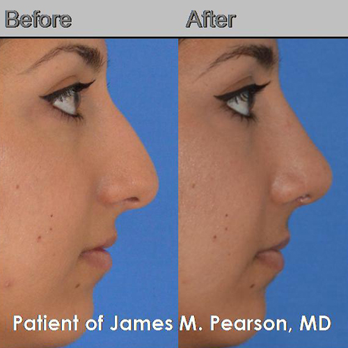 Pearson Middle Eastern Rhinoplasty photos