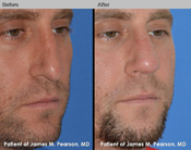 Pearson Revision Rhinoplasty Photo